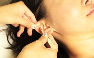 リボーヌ耳ツボダイエット施術イメージ